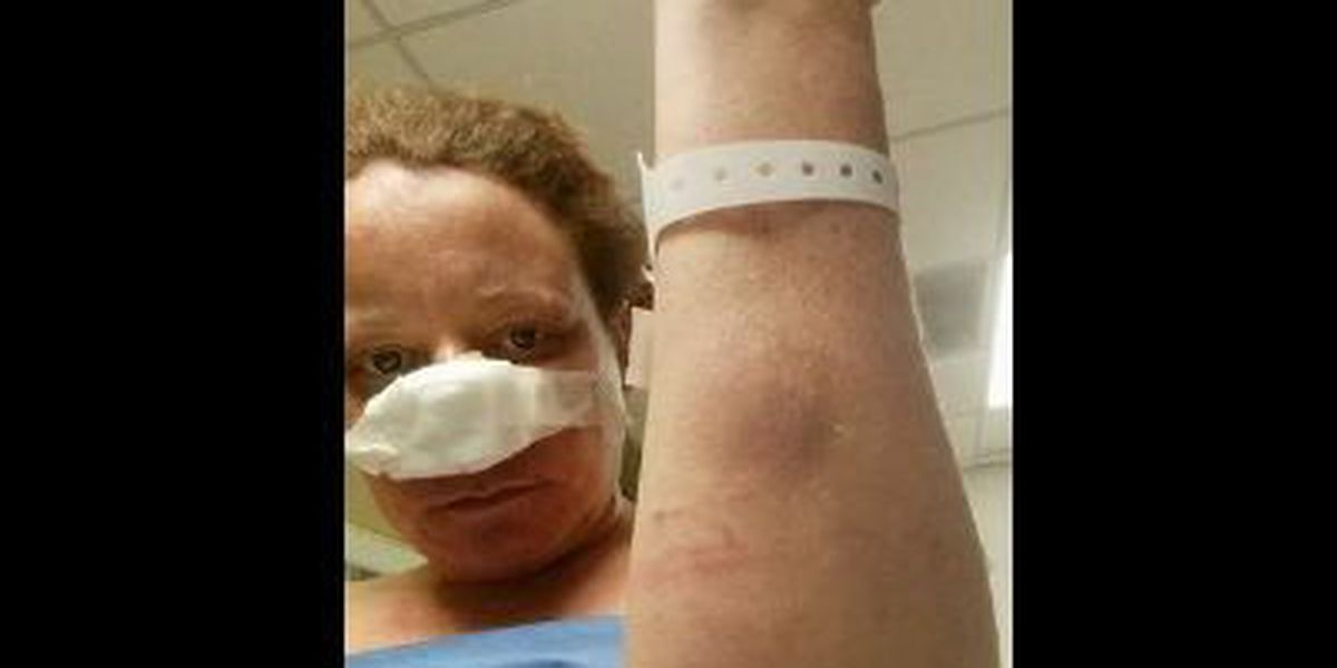 Petition created after man severely bites woman's face