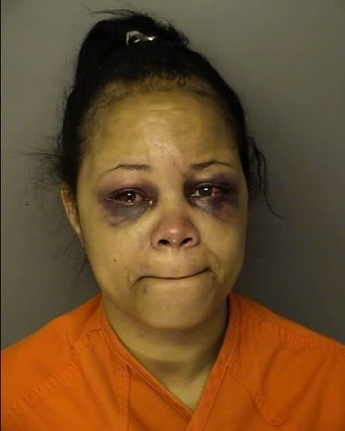 Police: Woman Charged Following Knife Attack At Myrtle