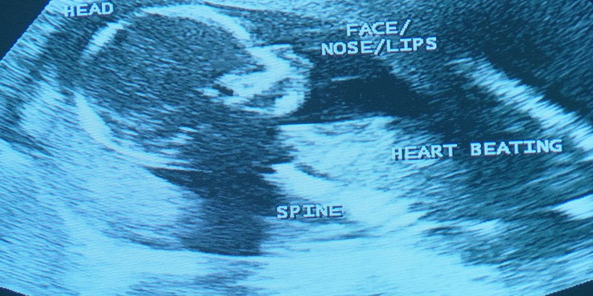 Pro-life and pro-choice advocates debate fetal heartbeat bill