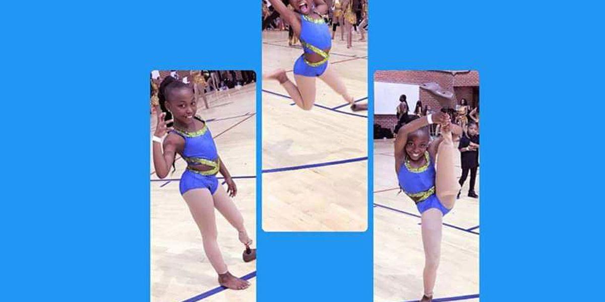 SC girl dances with prosthetic leg, goes viral