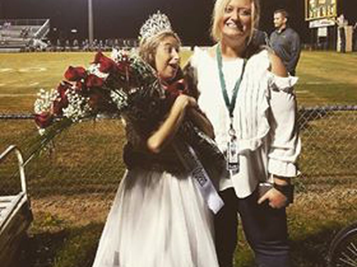 'It was an amazing moment:' Special needs student at Conway High crowned Homecoming Queen