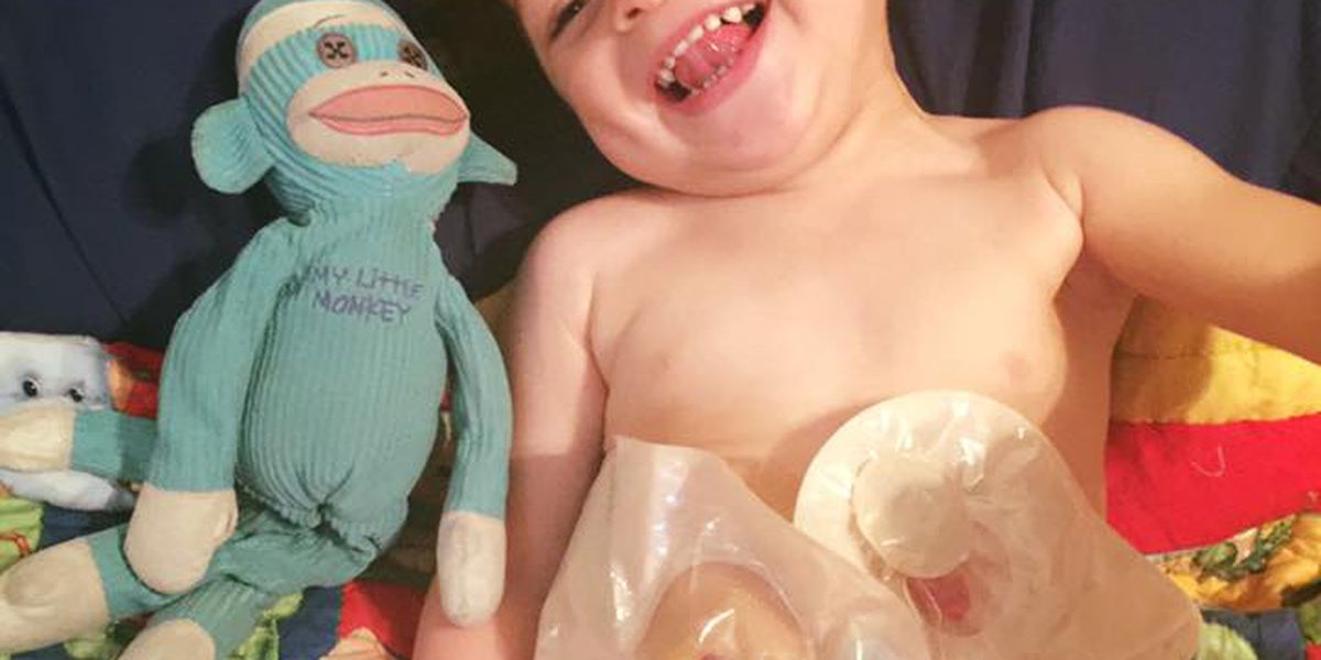 Myrtle Beach woman uses Facebook to educate others about son's rare medical condition